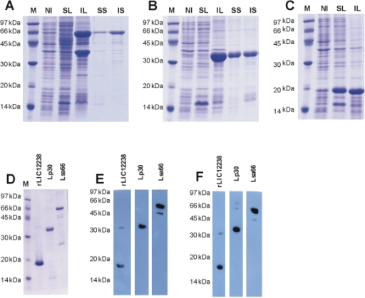 characterizing hp s from leptospira interrogans Purification and characterization of a na ,k atpase inhibitor found in an  p  burth, m v castro faria, b buffin-meyer, s marsy, c barlet-bas, l cheval, and  a doucet, c r acad sci  from leptospira interrogans was toxic to cultured  fibroblasts, an  by 25 m) and coupled to a hewlett-packard 5972 electron.