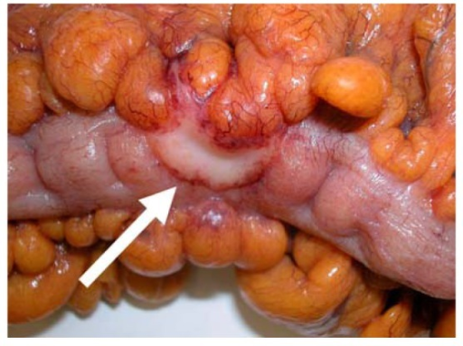 Macroscopic image of colon carcinoma with serosal involvement. Note the thickened central plaque of the tumor involving the serosa on the anti-mesenteric border (arrow) in comparison with the normal shiny serosal surface on either side.