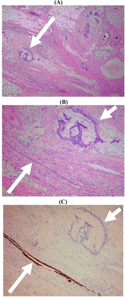 Histological image of colorectal carcinoma infiltrating the subserosal fat. (A) At low magnification there is no obvious relationship between the tumor and the serosal surface but note arrowed focus of malignant glands (×40). (B) At higher magnification the same tumor focus (short arrow) is adjacent to an inconspicuous serosal cleft lined by mesothelium (long arrow) (×100). (C) The mesothelium is highlighted by immunohistochemical staining for cytokeratin 7 (×100).