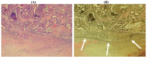 Histological image of colorectal carcinoma invading the subserosal fat. (A) The conventional hematoxylin and eosin stain shows tumor glands (upper field) with a marked reactive stroma towards the serosal surface (lower field). The relationship of the tumor to the native serosa is not clear. (×40) (B) Elastin stain shows an intact peritoneal elastic lamina (arrows) deep to the malignant glands suggesting that the tumor has not penetrated the serosal surface (×40).