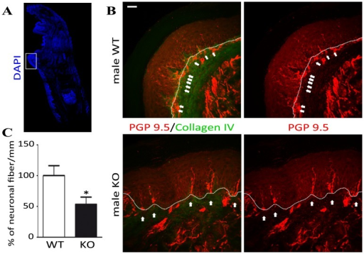 Detection of ENFs in α-GalA KO males frontal paws.The DAPI immunostaining of 50 µm floating sagittal mice frontal paw section with marked region of interest (A). The immunohistochemistry of α-GalA KO males (n = 3) revealed the scattered expression of PGP9.5 (red) - specific marker of neuronal terminations in the epidermis of frontal paw skin in comparison to their WT controls (n = 3). The dermis and epidermis border was distinguished by staining for Collagen IV (green) and visually determined by dotted lines. Paw epidermal PGP9.5 positive fibers showed morphological abnormality such as fragmentation in α-GalA KO males, whereas the epidermal fibers showed a more regular morphology in WT males (white arrows) (B). Scale bar represents 100 µm. Numerical analysis of neuronal fibers terminations showed significant decrease (about 50%; p = 0.0161) in α-GalA KO males in comparison to WT (C).
