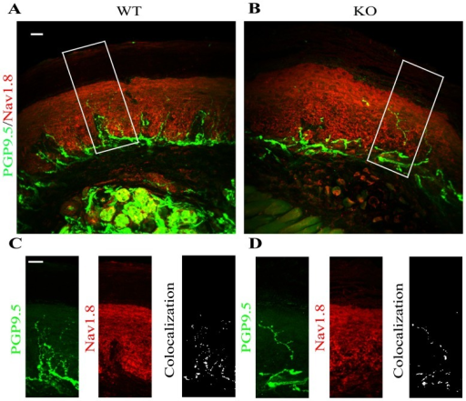 The expression of Nav1.8 in epidermal neuronal fibers of α-GalA KO males frontal paws.The evaluation of co-localization of Nav1.8 and PGP 9.5 expression in 50 µm floating sagittal sections of WT (A) and α-GalA KO males (B) (n = 3) revealed similar values of Pearson's coefficient in both cases (PWT = 0.16, PKO = 0.12). The neuropathic pain receptor Nav1.8 is expressed in neuronal fibers of WT (C left panel) males marked by specific antibody PGP 9.5 with the same intensity as it is expressed in α-GalA KO (D left panel, p = 0.1911). Panels C, D were enhanced with 1.125 zoom respectively to square area in figures A, B. Scale bars represent 100 µm.