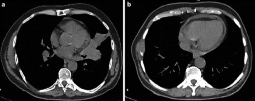 a Chest CT scan showing opacity in the left lung hilum. b Chest CT scan showing a lytic lesion of the anterior arc of the eighth rib.