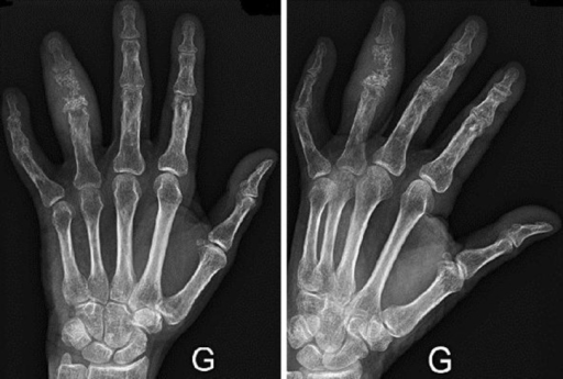 X-ray of the left hand after radiation therapy showing a decrease of the soft tissue swelling and an early reossification of the proximal phalanx.