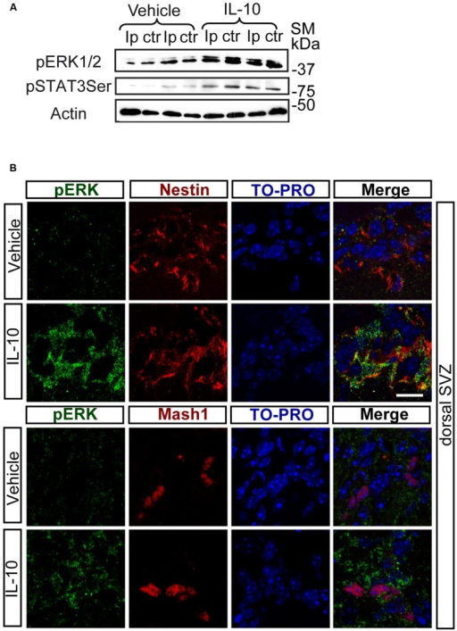 In vivo IL-10 induces the phosphorylation of ERK and STAT3. (A) Phosphorylation of ERK1/2 and STAT3ser727 in the ipsilateral (Ip) and contralateral (ctr) SVZ niche of adult mice 30 min after they received an ICV injection of IL-10 (1 ul of 50 ηgr/ml; n = 3). (B) Pictures of dorsal SVZ after ICV IL-10 injection. ERK1/2 phosphorylation (green) takes place rapidly (30 min) in Nestin+ (red) and Mash1+ (red) progenitors cells in dorsal SVZ after in vivo IL-10 stimulation. To-pro (blue) stained all nuclei (n = 3). Scale bar, 30 μm.
