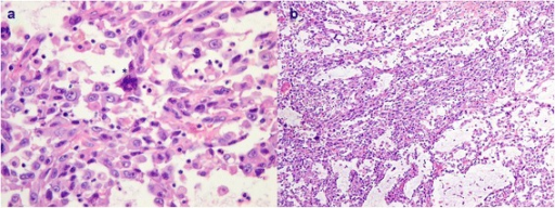 Photomicrograph showing (a) malignant cells with marked nuclear pleomorphism (#) and the presence of a multinucleated tumor giant cell (*) and (b) sarcomatoid areas with spindled cells in a myxomatous background.