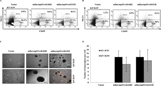 In-vitro self-renewal and differentiation of transformed K5+/K19− or K5+/K19+(A) and (B). Control or transformed K5+/K19− (A) or K5+/K19+ (B) cells were grown in DFCI-2 (differentiation) medium in Matrigel. Acini were trypsinized and stained with PE-Cy5 conjugated anti-CD49f and FITC conjugated anti-MUC1 and subjected to FACS analysis. (C) Representative images (magnification 4X) of tumorspheres from K5+/K19− and K5+/K19+ cells with vector or triple oncogene combinations are shown. (D) For tumorsphere-formation assay indicated cell lines were cultured in low-attachment plates in MEGM media for 3 weeks. Spheres ≥ 200 μm were quantified. Mean +/− SD of a representative experiment done in 6 replicates is shown.