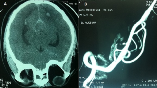 (A) Brain CT: ventricular flood with spontaneous hyperdensity of sulci and sylvian valleys; (B): magnetic resonance angiography (MRA): aneurysm of the initial segment of posterior inferior cerebellar artery (PICA)