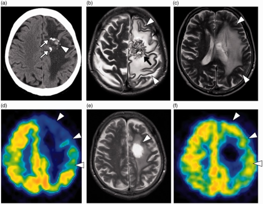 Radiologic studies 4 years after the SRS. (a) A non-contrasted axial CT showed partially calcified AVM in the left frontal lobe white matter (arrows). The small hyperattenuating lesion was compatible with microbleeding (arrowhead). (b, c) An axial T2W MRI showed a necrotic mass (arrow) and surrounding massive edematous lesion (arrowheads) in the subcortical white matter, from the left supra and middle frontal gyri to the middle temporal gyrus. (d) FDG PET demonstrated not only a defect of tracer accumulation in the necrotic core but also severe hypometabolism in the surrounding brain tissues (arrowheads). The lesion-to-contralateral ratio of standardized uptake value was 0.78 in the left precentral gyrus. (e) Three weeks after necrotomy, a T2W MRI showed high signal intensity (arrowhead) representing the resected site with brain edema significantly reduced. (f) A postoperative FDG PET examination showed remarkable recovery of metabolic activity in the left cortex (arrowheads). The lesion-to-contralateral ratio increased to 0.90 in the left precentral gyrus.