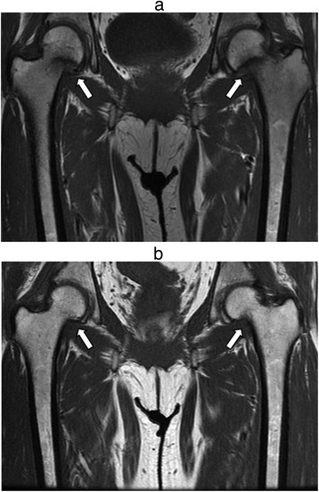 MRI findings of incomplete bilateral transcervical fractures (Arrows) before (a) and after (b) the treatment