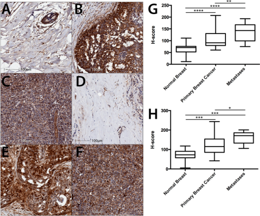 CaMKII expression and phosphorylation at T286 is increased in primary breast cancer and lymph node metastases tissues.(A,D) Normal breast, (B,E) primary breast cancer, and (C,F) lymph node metastases were examined for (A–C) total CaMKII and (D–F) pT286-CaMKII expression by immunohistochemistry. Staining was quantified and expressed as an H-score. (G) Quantification of total CaMKII and (H) pT286-CaMKII expression in 70 primary breast cancer, 40 matched normal breast, and 10 lymph node metastases cores. Photomicrographs are representative of each tissue type. *denotes statistical significance p < 0.05, **p < 0.01, ***p < 0.001, ****p < 0.00001, as determined by one-way ANOVA.