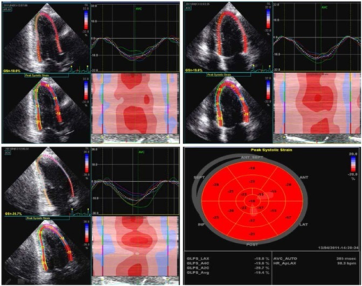 Global longitudinal strain assessed by speckle-tracking echocardiography. Measurements are obtained from the 3 apical views and averaged. Bull's-eye plot is built from global and regional longitudinal systolic strain measurements representing the left ventricular myocardial function. (Courtesy J. Liu, MD)