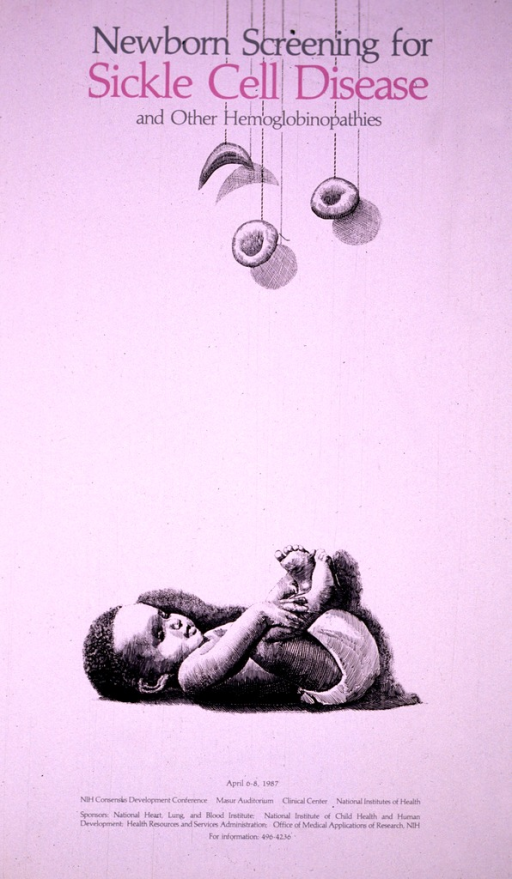 <p>White poster with a sketch of an African American newborn done in black and white.  There is a mobile above the infant and the only color on the poster is &quot;sickle cell disease&quot; which is in a pink tone.</p>