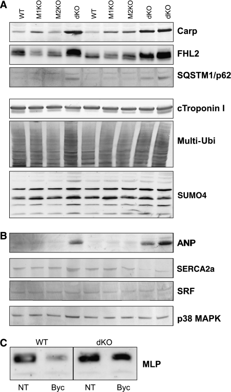 Characterization of altered signaling pathways in dKO myocardium by western blot studies. (A) Upregulation of the MuRF1/MuRF2 binding proteins CARP, FHL2, and SQSTM1 in dKO myocardium. Striking upregulation required the deletion of all four MuRF1/2 alleles, suggesting that both MuRF1 and MuRF2 synergistically control the transcriptional regulators CARP, FHL2, and SQSTM1. Below, cTnI and total multi-ubiquitinated protein species were not affected by the inactivation of MuRF1 and MuRF2 alleles. Among SUMO family members, we noticed for SUMO4 differential reactivity in the 8–30 kDa region. (B, C) Hyperactive stretch signaling in dKO as suggested by chronic upregulation of stretch-dependent signaling markers. (B) In myocardium, ANP is barely detectable in WT, MuRF1-KO, and MuRF2-KO hearts. ANP is strikingly upregulated in dKO myocardium (ventricles, 12 months old). Other markers for cardiomyopathy/hypertrophy remain normal or are moderately upregulated: SERCA2a (used as a marker for heart failure/calcium overload), SRF (previously implicated in stretch-dependent MuRF2 signaling), p38 Map kinase (a marker for ERK signaling and heart failure). (C) In dKO quadriceps muscles, hyperactive stretch signaling was suggested by the effect of 72 h immobilization on the stretch marker MLP: abnormally high levels of MLP/Crsp3 are maintained after 72 h immobilization in dKO quadriceps (NT=no treatment, byc=bycast immobilization).