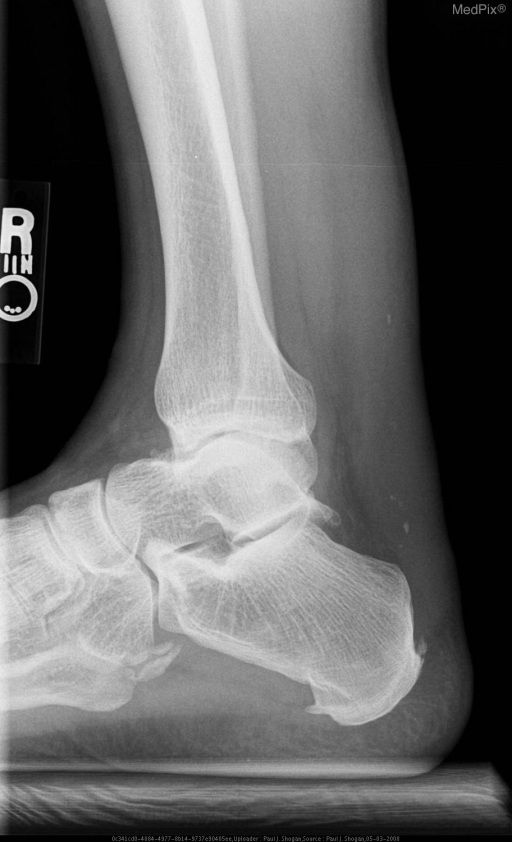 Lateral radiograph of the right ankle, reveals fusiform thickening of the Achilles tendon.