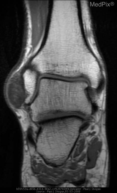 There is a multilobulated mass, measuring 2.6 x 2.5 x 1.4 cm at the anterior aspect of the right fibula, that is isointense on T1, with no associated bony erosion.