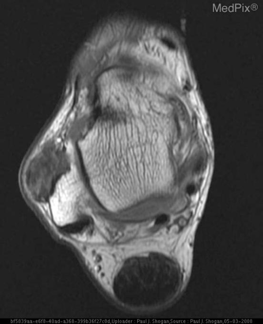 There is a multilobulated mass, measuring 2.6 x 2.5 x 1.4 cm at the anterior aspect of the fibula, that is isointense on T1, with no associated bony erosion.  Additionally, there is marked thickening of the Achilles tendon.