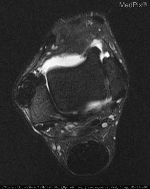 There is a multilobulated mass, measuring 2.6 x 2.5 x 1.4 cm at the anterior aspect of the fibula, that is hypointense, and isointense to the Achilles tendon on T2 weighted sequences.  There is no associated bony erosion.  Additionally, there is marked thickening of the Achilles tendon without hyperintense signal to suggest tear.