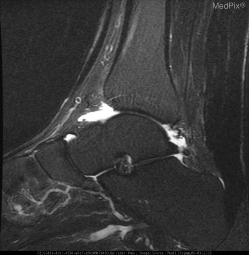 Sagittal FSE FS T2 weighted image of the right ankle reveals abnormal thickening of the Achilles tendon without abnormal hyperintense signal to suggest a tear.  Also noted is convex curvature to the normally flat or concave anterior aspect of Achilles tendon.