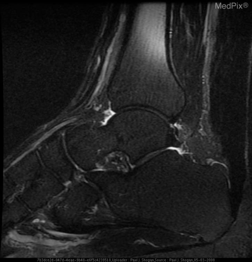 Sagittal FSE FS T2 weighted image of the left ankle reveals abnormal thickening of the Achilles tendon, without abnormal hyperintense signal to suggest a tear.  Also noted is convex curvature to the normally flat or concave anterior aspect of Achilles tendon.