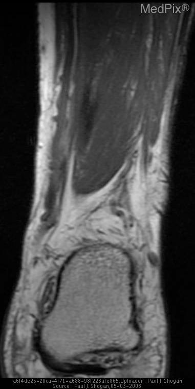 T1 weighted coronal image of the left ankle reveals thickening of the tendinous portion of the medial plantar fascia.