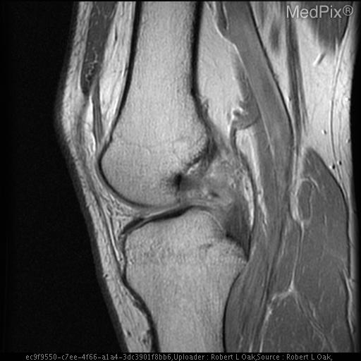 Heterogeneous high signal is seen within the PCL consistent with a complete tear.  Graft is intact.  Joint effusion present.
