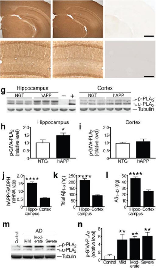 GIVA-PLA2 levels in hAPP mice and humans with AD. (a–f) Coronal sections of cortex and hippocampus (a–c) or hippocampus (d–f) in 6-month-old NTG (a,d), hAPP (b,e), and GIVA-PLA2-deficient (c,f) mice. Scale bar (a–c) 1 mm, (d–f) 250 μm. g–i, Hippocampal and cortical levels of GIVA-PLA2 in mice were determined by western blot analysis with a rabbit polyclonal antibody. g, Representative western blot showing levels of phosphorylated (p) and unphosphorylated (u) GIVA-PLA2. Tubulin served as a loading control, NIH3T3 cells as a positive control (+), and cortex from GIVA-PLA2-deficient mice as a negative control (−). h,i, Hippocampal (h) and cortical (i) GIVA-PLA2 levels determined by densitometric analysis of western blot signals (n=12 mice per genotype and brain region; age: 6 months). j, hAPP mRNA levels in hippocampus and cortex of hAPP mice determined by quantitative RT-PCR (n=7 mice; age: 2−4 months). k, l, Levels of Aβ1-x (k) and Aβ1−42 (l) (ng per g of tissue) in hippocampus and cortex of hAPP mice determined by ELISA (n=8 mice; age, 2−4 months). m–n, Levels of phosphorylated GIVA-PLA2 protein in the CA1 hippocampal region in patients with mild, moderate, or severe AD and in nondemented, age-matched controls (C) were determined by western blot analysis. m, Representative western blot. n, Western blot signals were quantitated densitometrically and normalized to tubulin (n=4−8 cases per group). *P<0.05, ****P<0.0001 (t test; mean ± s.e.m.), **P<0.01 vs. control (Tukey test; mean ± s.e.m.).