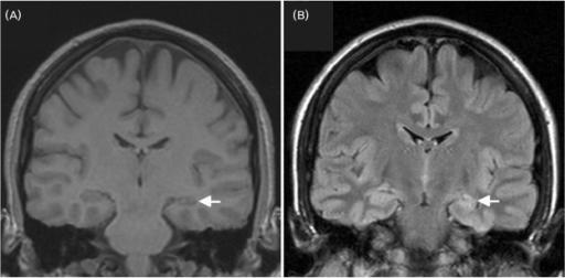 Neuroimaging in Epilepsy Overview Epilepsy Protocol MRI