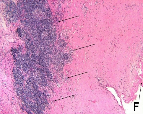 Light micrograph showing typical histologic features of cases revised for suspected metal sensitivity, including a thick, mostly acellular tidemark area lined by fibrin (F) and thick, dense aggregates of lymphocytes at the rear of the tissue (arrows) (Stain, hematoxylin and eosin, original magnification ×40). This received an ALVAL score of 10 (3 for synovial lining, 4 for inflammatory infiltrate, and 3 for tissue organization).