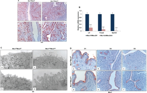 Enhanced proliferation in the uterine epithelium and lack of receptivity in Msx1d/dMsx2d/d mice.A. Immunohsitochemical localization of Ki67 in the uterine sections of Msx1f/fMsx2f/f (left panel, a and c) and Msx1d/dMsx2d/d (right panel, b and d) mice on day 4 of pregnancy. Panels a and b indicate lower magnification (20×) and c and d indicate higher magnification (40×). L and G indicate luminal epithelium and glandular epithelium respectively. B. Real-time PCR was performed to analyze the expression of glandular factors, Lif, Foxa2 and Spink3 in uteri of Msx1f/fMsx2f/f and Msx1d/dMsx2d/d mice on day 4 of pregnancy. The level of Ck18 was used as internal control to normalize gene expression. The data are represented as the mean fold induction ± SEM, ***p<0.0001. C. Transmission electron microscopy of uterine sections obtained from Msx1f/f Msx2f/f (left panel, a and b) and Msx1d/dMsx2d/d (right panel, c and d) mice on day 4 of pregnancy. Panels a and c indicate lower magnification (5Kx) and b and d indicate higher magnification (30Kx). D. Immunohistochemical analysis of Muc-1 expression in the uterine sections of Msx1f/fMsx2f/f (upper panel) and Msx1d/dMsx2d/d (lower panel) mice on day 1 (a and d), day 4 (b and e) and day 5 (c and f) of pregnancy. L indicates luminal epithelium.