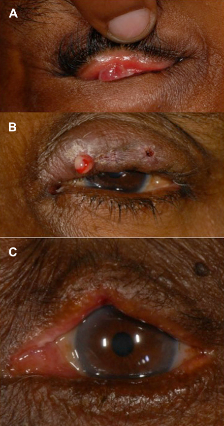 A: Post-operative granuloma. B: Post-operative wound infection C: Postoperative lid notching.
