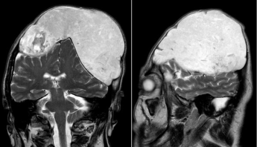Magnetic resonance imaging T2 weighted images show the distinct compression of both brain hemispheres and ventricles due to the tumor, measuring 15 × 12 × 10 cm. An inhomogeneous high signal is shown within the tumor.