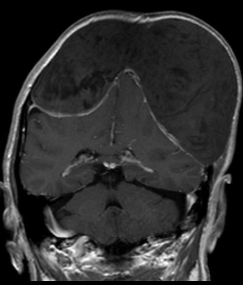 Magnetic resonance imaging T1 weighted image past gadolinium shows a thickening of the dura, but no enhancement within the epidermoid tumor.