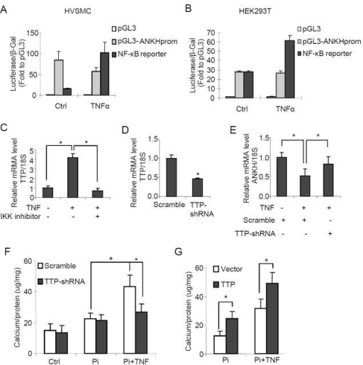 NF-κB dependent expression of tristetraprolin (TTP) mediated the effects of TNF on ANKH expression and calcification. ANKH-promoter activity assay with pGL3 luciferase reporter in (A) HASMCs and (B) HEK293T cells. (C) IKK inhibitor was added to block NF-κB signal; RT-PCR analysis of TTP mRNA level. After transfection of scramble or TTP shRNA (pSingle-tTS-TTP-shRNA) for 24 hr, RT-PCR analysis of mRNA level of (D) TTP and (E) ANKH with or without TNF (10 ng/ml). (F) Calcium content assay: after transfection of scramble or TTP shRNA for 24 hr, cells were treated with Pi or Pi+TNF (10 ng/ml) for 7 days. (G) Calcium content assay: after transfection of empty or TTP vectors for 24 h, cells were treated with Pi or Pi+TNF (10 ng/ml) for 7 days. (*P<0.05, n=3)