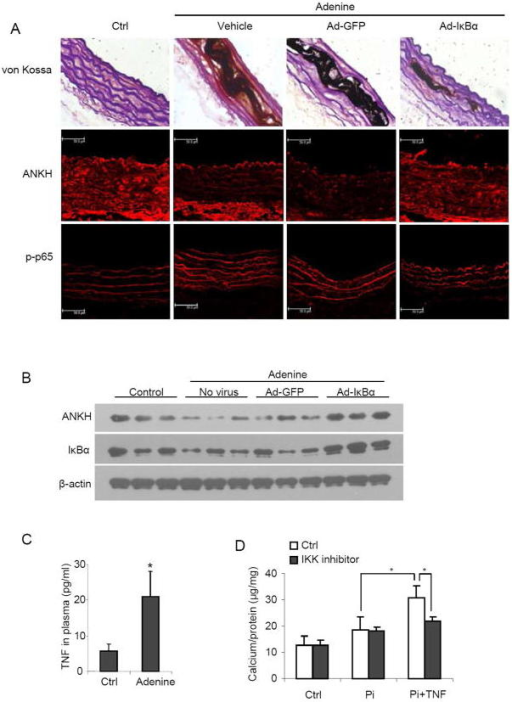 IκBα increased ANKH expression and decreased calcium deposition in in vivo and ex vivo models. (A) In the rat chronic renal failure (CRF) model, Ad-IκBα or Ad-GFP were mixed with matrix gel and smeared around the abdominal aorta. Calcium deposition was analyzed by von Kossa staining. Ade, adenine diet at 6 weeks. ANKH and p-p65 levels were detected by immunohistochemical staining; shows one representative image from 6 rats per group (x 400). (B) Western blot analysis of protein levels of ANKH and IκBα in abdominal aortas. (C) Serum TNF level in CRF rats (n=6 rats per group, *P<0.05). (D) Calcium content in human renal artery tissue cultured in DMEM with Pi (3.0 mM) and/or TNF (10 ng/ml) for 2 weeks (n=4 per group, *P<0.05).