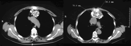 CT images show the mass into the anterior mediastinum. On the right it is possible to observe the calcified connection between the mass and the sternum; no cortical erosion is present.