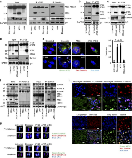 Nuclear ATG5 physically interacts with survivin.(a) Lysates of Jurkat T cells overexpressing ATG5 or treated with etoposide (48-h cultures) were immunoprecipitated with anti-ATG5 or antisurvivin antibodies. A physical interaction between ATG5 and survivin, absent in untreated or GFP-expressing control cells, was detected reciprocally. Full-length immunoblots are provided in Supplementary Fig. S12. (b) Jurkat T cells overexpressing ATG5-ΔNES exhibited no ATG5/survivin molecular interaction. (c) The ATG5-K130R mutant did show coprecipitation of survivin with ATG5. (d) Calpain-mediated, truncated ATG5 (tATG5), that is, the N-terminal part of ATG5, failed to bind survivin. The ATG5-K130R mutant was the control. (e) Confocal microscopy. MDA-MA-231 cells were etoposide treated or transduced as indicated (48-h cultures) and stained. In untreated cells, survivin and ATG5 were in the cytosol with no colocalization. ATG5-transduced cells exhibited ATG5/survivin colocalization in the nucleus. ATG5-ΔNES-transduced cells showed survivin, but not ATG5, in the nuclei of cycling cells. Numerical analysis was performed and Pearson's correlation coefficients are indicated in the images. Scale bar, 10 μm. Right: Statistical analysis (analysis of variance) is presented in which the results of ten representative cells within each group were integrated. Values are means±s.d. (f) The physical interaction between Aurora B and survivin was analysed reciprocally and reduced in cells expressing high levels of nuclear ATG5. Neither ATG5 nor HSP90 were detectable in the Aurora B-containing immune precipitate, but ATG5 molecularly interacted with survivin. Results representative of three independent experiments. (g) Confocal microscopy. HeLa cells treated with etoposide or transduced as indicated (48-h cultures) were stained with centromere-specific antiserum and anti-Aurora B (top panels) or antisurvivin antibodies (lower panels). In untreated or ATG5-ΔNES transduced cells, both Aurora B and survivin were recruited to prometaphase centromeres and located at the central spindle during anaphase where they no longer colocalized with centromeres. In contrast, etoposide-treated or ATG5-transduced cells recruited much less Aurora B to prometaphase centromeres. Such recruitment, however, was observed during anaphase. Compared with cells in normal mitosis, survivin, although reduced, was recruited to centromeres in prometaphase, but, similar to Aurora B, remained attached to centromeres during anaphase. Such mislocation of Aurora B and survivin was associated with severe chromosome alignment and segregation defects. Colocalization images were prepared using Imaris software. Numerical analysis was performed and correlation coefficients are indicated. Scale bar, 2 μm. (h) Confocal microscopy. Sections of lung (non-small-cell lung cancer) and oesophageal carcinoma stained for ATG5 and survivin expression. In untreated patients, ATG5 expression in cancer cells was slight and mainly cytosolic. Following radio- and/or chemotherapy, ATG5 was preferentially expressed in the nucleus and colocalized with survivin. Overlay images present the average Pearson's correlation coefficient as calculated with Imaris. Results are representative of three independent experiments. Scale bar, 10 μm.