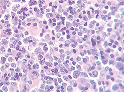 Photomicrograph of computed tomography-guided tru-cut biopsy specimen taken from anterior mediastinal mass showing effacement of normal architecture of lymph node with sheets of atypical large lymphoid cells (H and E, ×40)