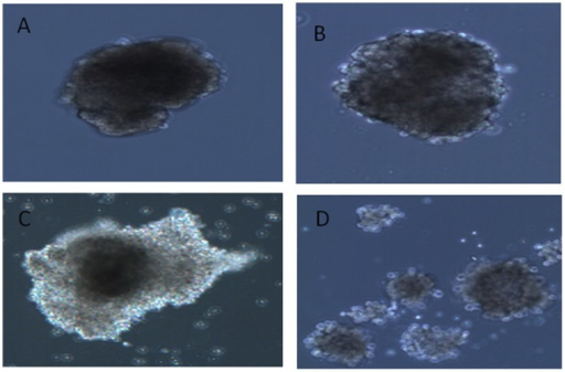 Virus-induced cytopathic effect in primary human pancreatic islets cells.A. Uninfected islet. B. Islets infected with the E4 isolate 5 days post infection. C. Islets infected with E16 isolates 3 days post infection. D. Islets infected with E30 isolates 3 days post infection. The figure is representative of seven islet donors.