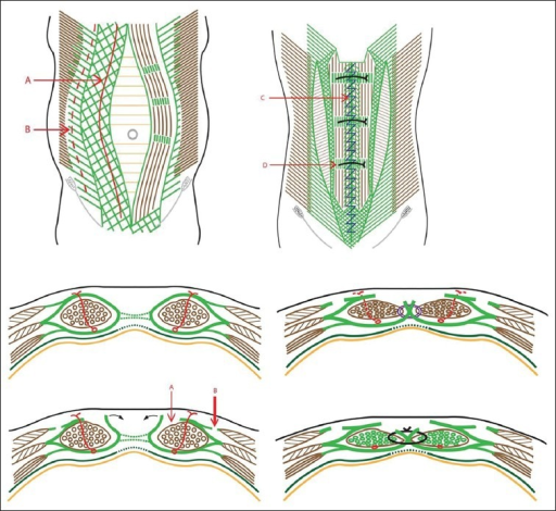 schematic diagrams of rectus sheath turn-over and exter ... rectus sheath diagram  #15
