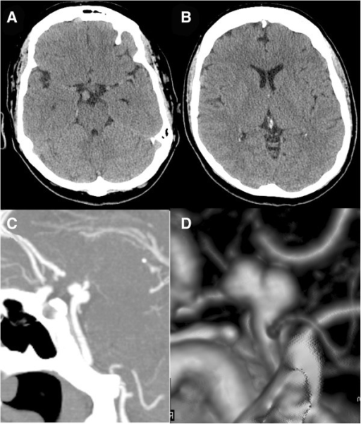 Computed tomography at first presentation. Cranial computed tomographic scan showing density in the right interpeduncular cistern (A) and no subarachnoid hemorrhage or hydrocephalus (B). A computed tomographic angiogram sagittal view (C) and lateral view of a reconstruction (D) show an aneurysm arising from the basilar artery distal to the origin of the right superior cerebellar artery.