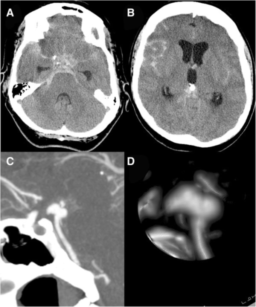 Cranial computed tomography scan 21 days after presentation. A cranial computed tomography scan 21 days after presentation showing diffuse subarachnoid hemorrhage (A) with hydrocephalus (B). The computed tomographic angiogram sagittal view (C) and lateral view of a reconstruction (D) show growth of the aneurysm on the anterior aspect.