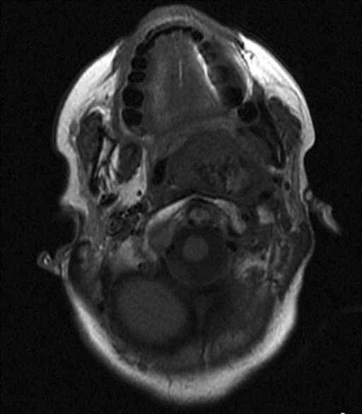 MRI T1 sequence: a partially well-delimited iso- to hypointese expansive process.