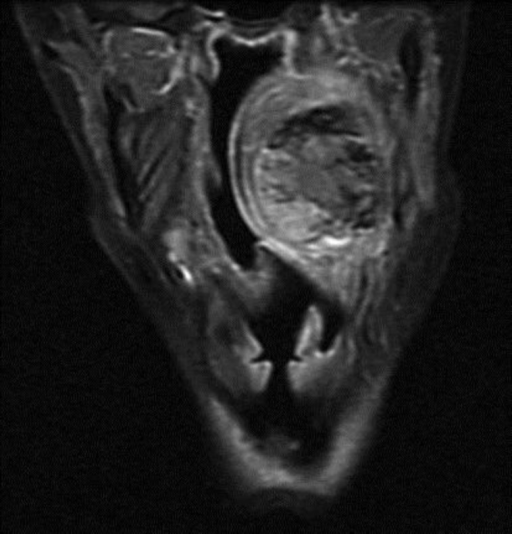 MRI T1FSGD coronal view: the presence of some weak signals was suggestive of vascular structures within the mass.