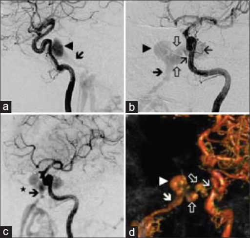 Digital subtraction (a: Lateral view, b: Left oblique view, and c: Later view and more lateralized than b) and selective three-dimensional (d: AP view) angiography of the left internal carotid artery. It is seen the pass to the left cavernous sinus through meningeal branches of the meningohipofisarial and inferolateral trunks (b and d, thin arrows). The contrast material passes through intercavernous sinus (b and d, arrows) into the right cavernous sinus (a, b and d, arrowheads). Retrograde flow is observed from the inferiro petrosal sinus (a, b, c and d, thick arrow) and the ophthalmic vein (c, star)