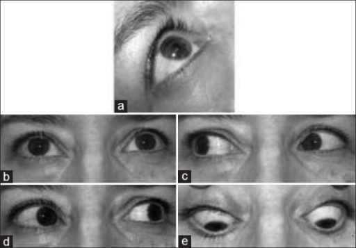 Photograph of AO 1 week after treatment. The proptosis, bipalpebral edema, and congestion of conjunctival vessels are no longer observed (a and b). Eye movements are conserved (c-e)