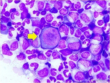 Cytology of bone marrow. The yellow arrow indicates a giant pronormoblast in the bone marrow.