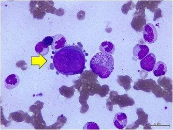 Cytology of bone marrow. The yellow arrow indicates a giant pronormoblast with 'dog ear' cytoplasmic projections in the bone marrow.