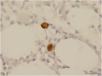 Immunohistochemical staining of bone marrow core biopsy. Immunohistochemical staining for parvovirus B19 using monoclonal antibody NCL-PARVO (NovocastraTM, Leica Microsystems, Newcastle upon Tyne, United Kingdom) specific for viral antigens VP1 and VP2 in bone marrow core biopsy specimen.