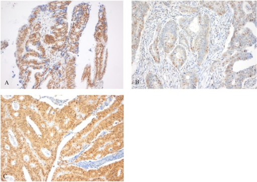 Staining pattern of MSH3 protein expression.Heterogeneous MSH3 protein expression (A), demonstrated by expression of both brown (positive) and blue (negative) nuclei upon MSH3 IHC staining. Low MSH3 protein expression was defined as <85% brown staining of cell cores in tumor cells (B) and high MSH3 protein expression was defined as ≥85% brown staining of cell cores in tumor cells (C).
